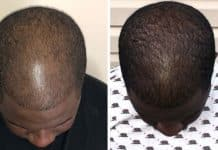 Causes and Treatments for Black Male Hair Thinning on Top Issue