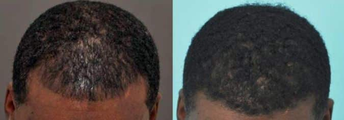 How to Prevent and Treat Black Male Hair Thinning on Top