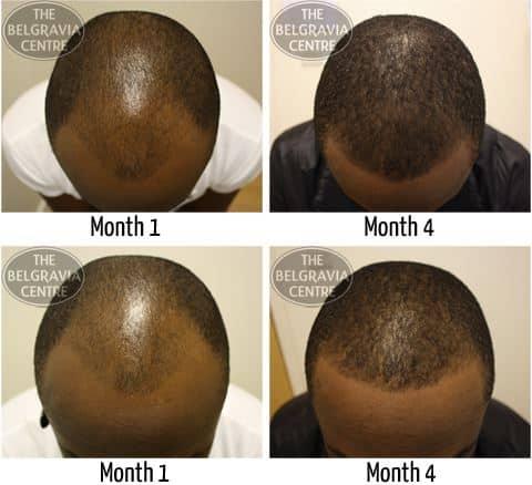 male hair clinic